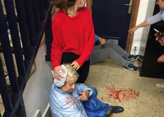 anciana-barcelona-disturbios-cataluña-cataluya-referendum-heridos