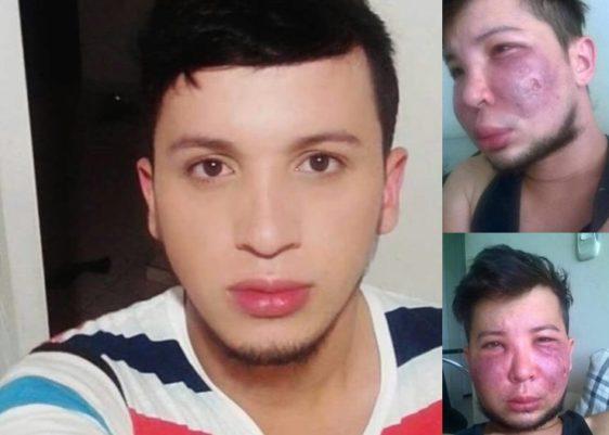 cara plastica-Jerson Trujillo-tragedia