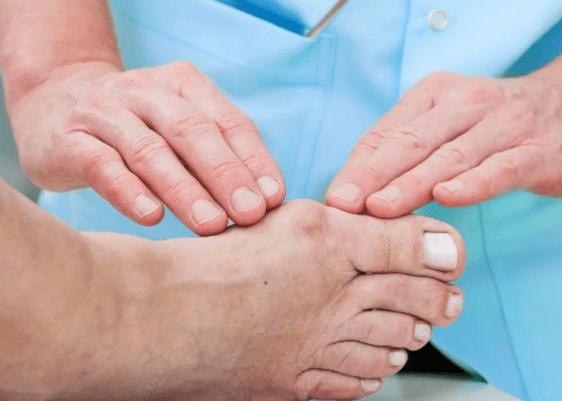 juanetes-salud-dudas-respuestas-mayo-clinic-clinica