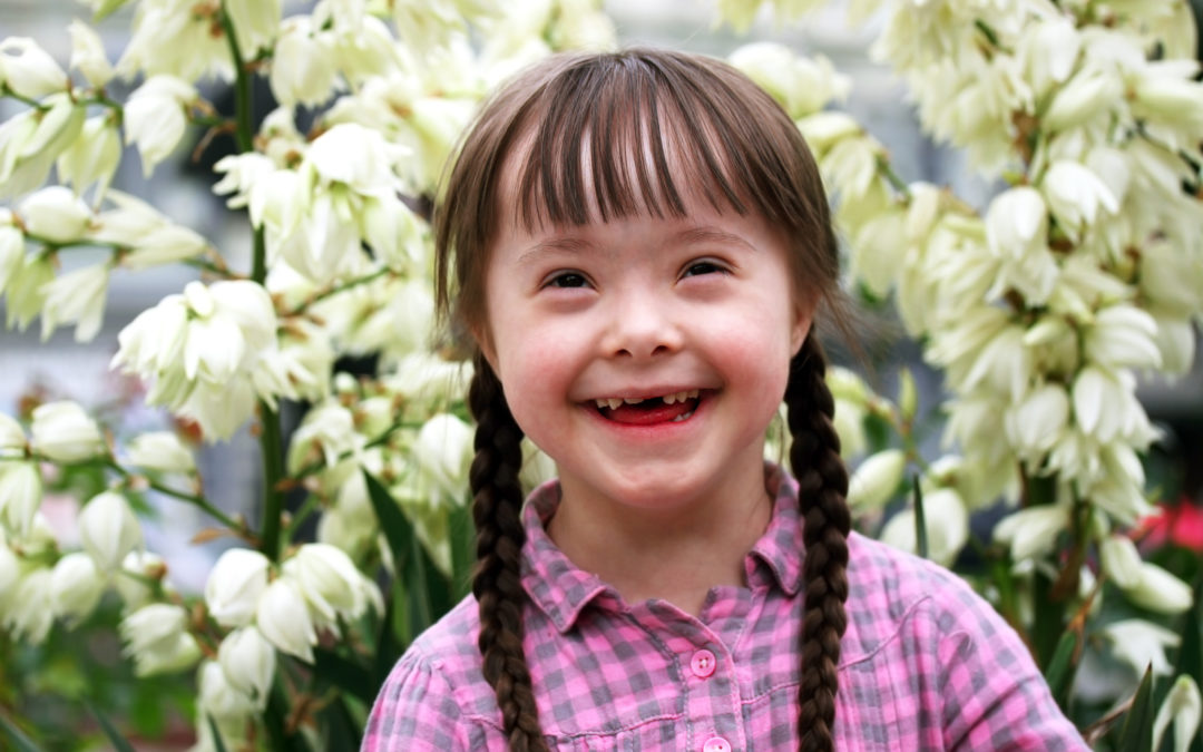 sindrome de daw,foto, dia mundial, 21 de marzo
